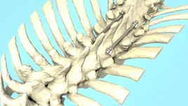 Spine Implant