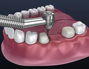 3D model Tooth supported fixed bridge and single crown