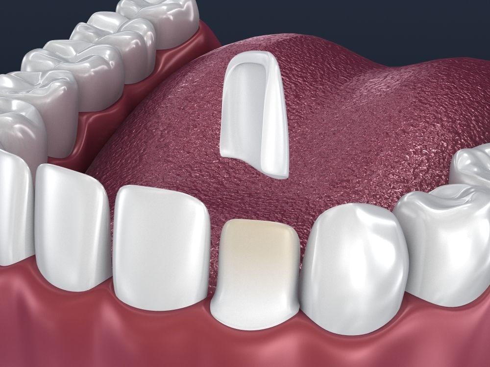 Dental veneer preparation and instalation