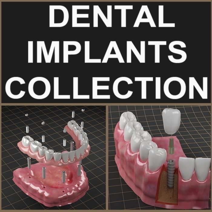 Dental Implant Collection