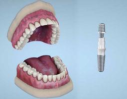Dental implants 3D Model