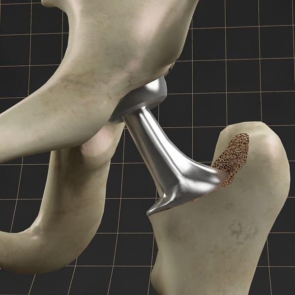 Femoral prosthesis femur and pelvic gilder