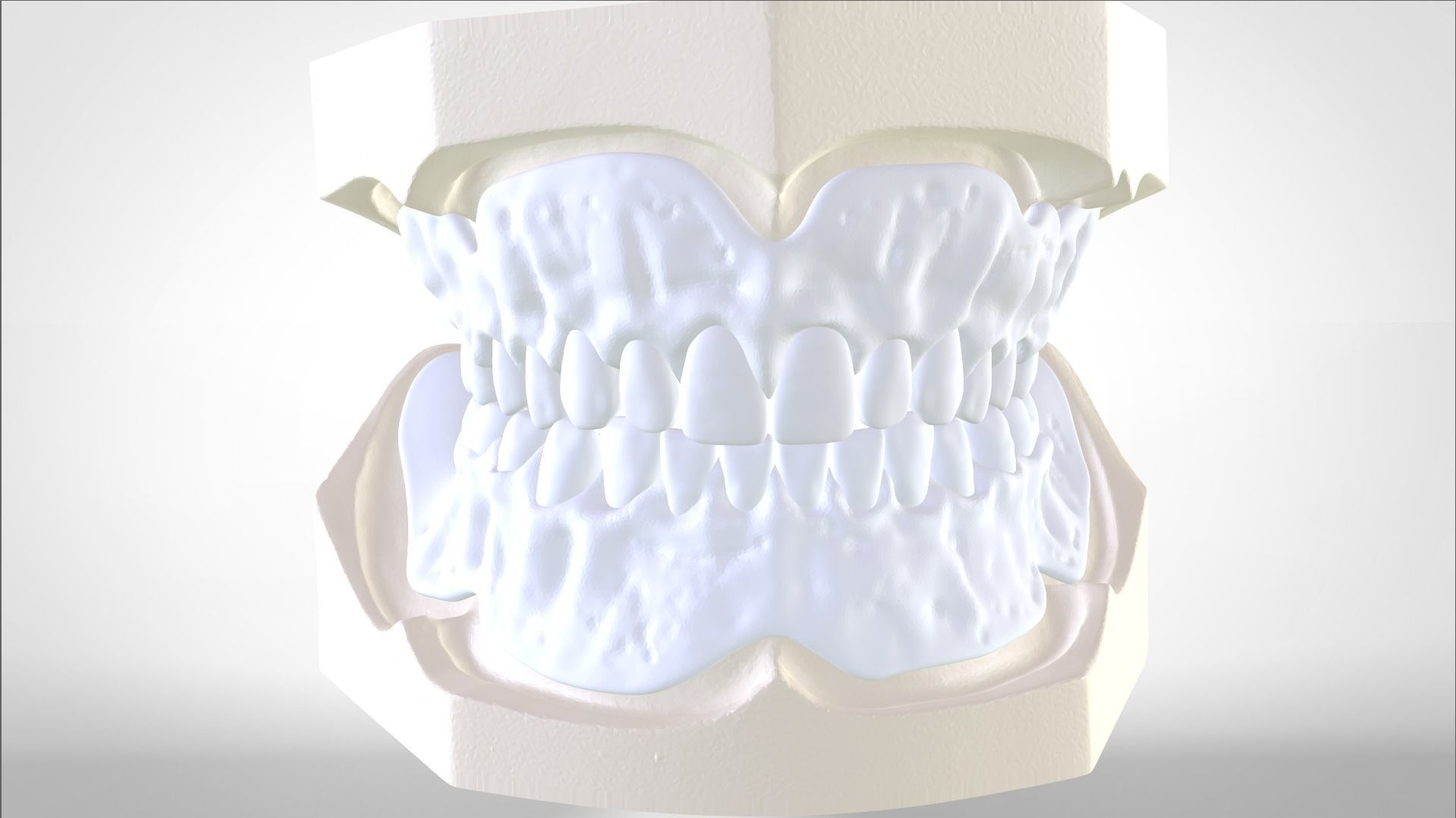 Digital Try-in Full Dentures for Injection Molding