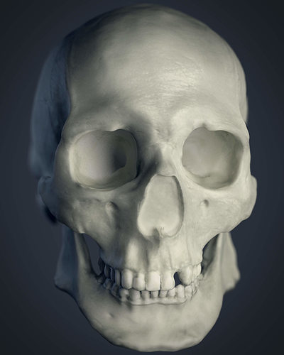 3d facial skull reconstruction