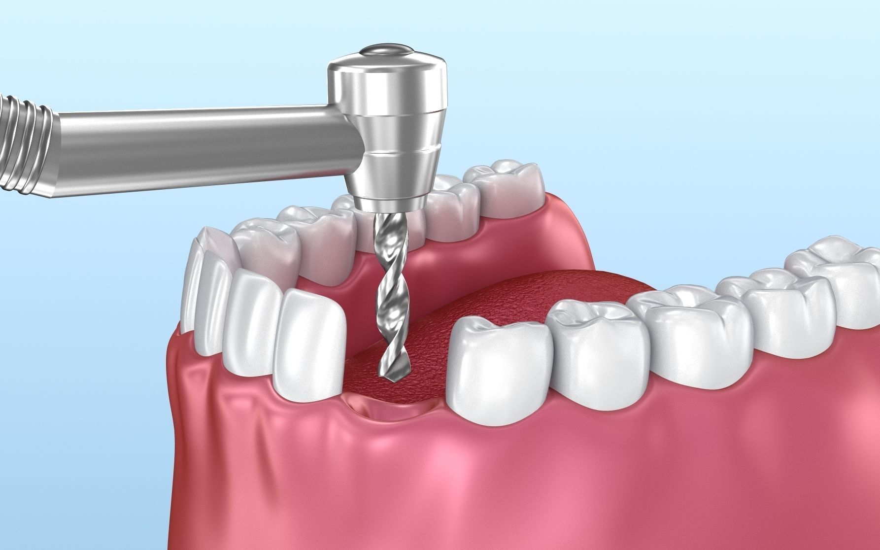 Dental implant animated instalation