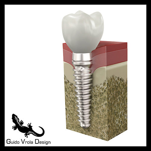dental implant 3d model obj 3ds blend mtl 1