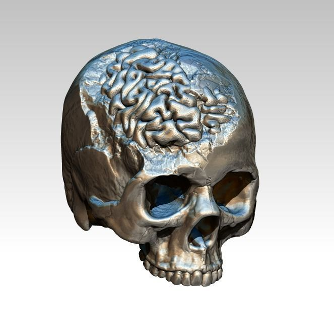Human Brain Skull Damage Salvage Highpoly Detailed Realistic