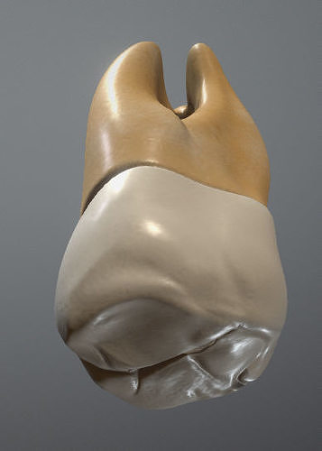 Maxillary Third Molar