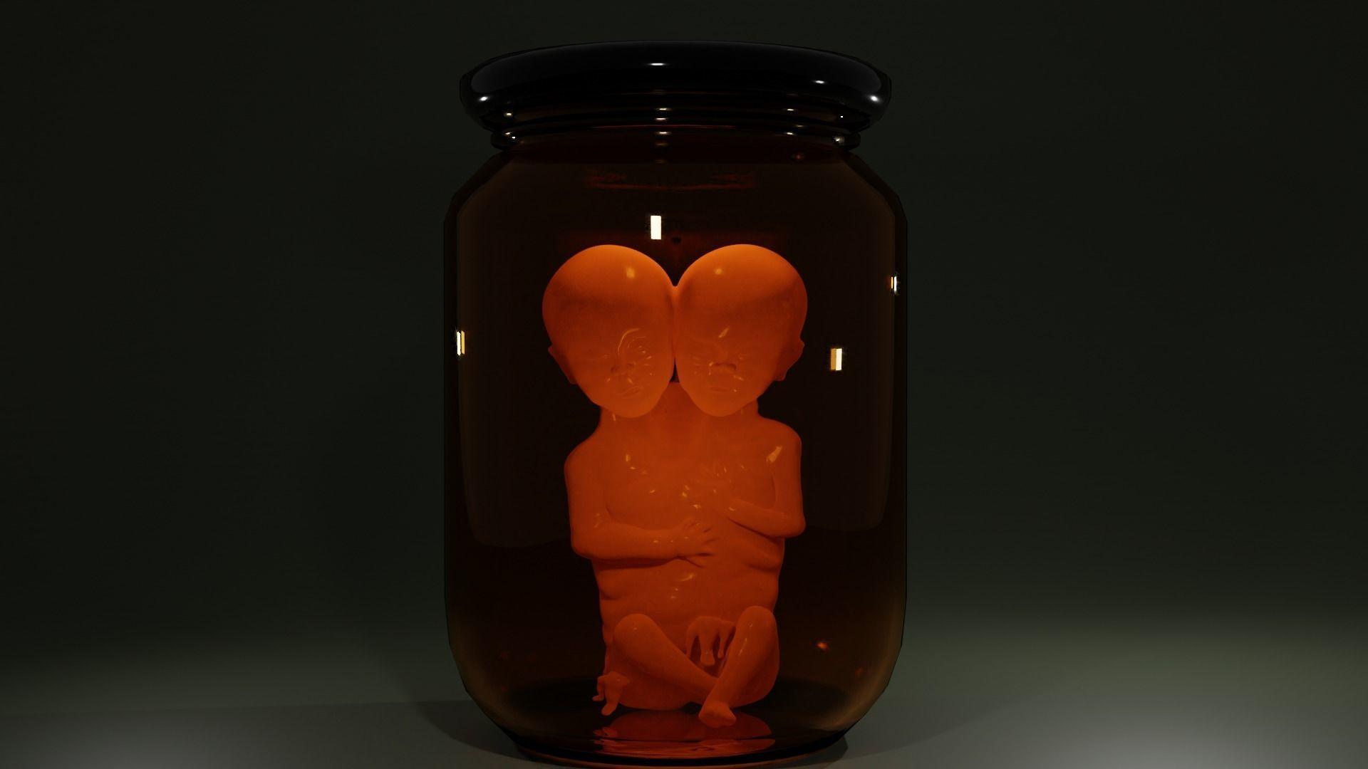 Siamese Twin Fetus