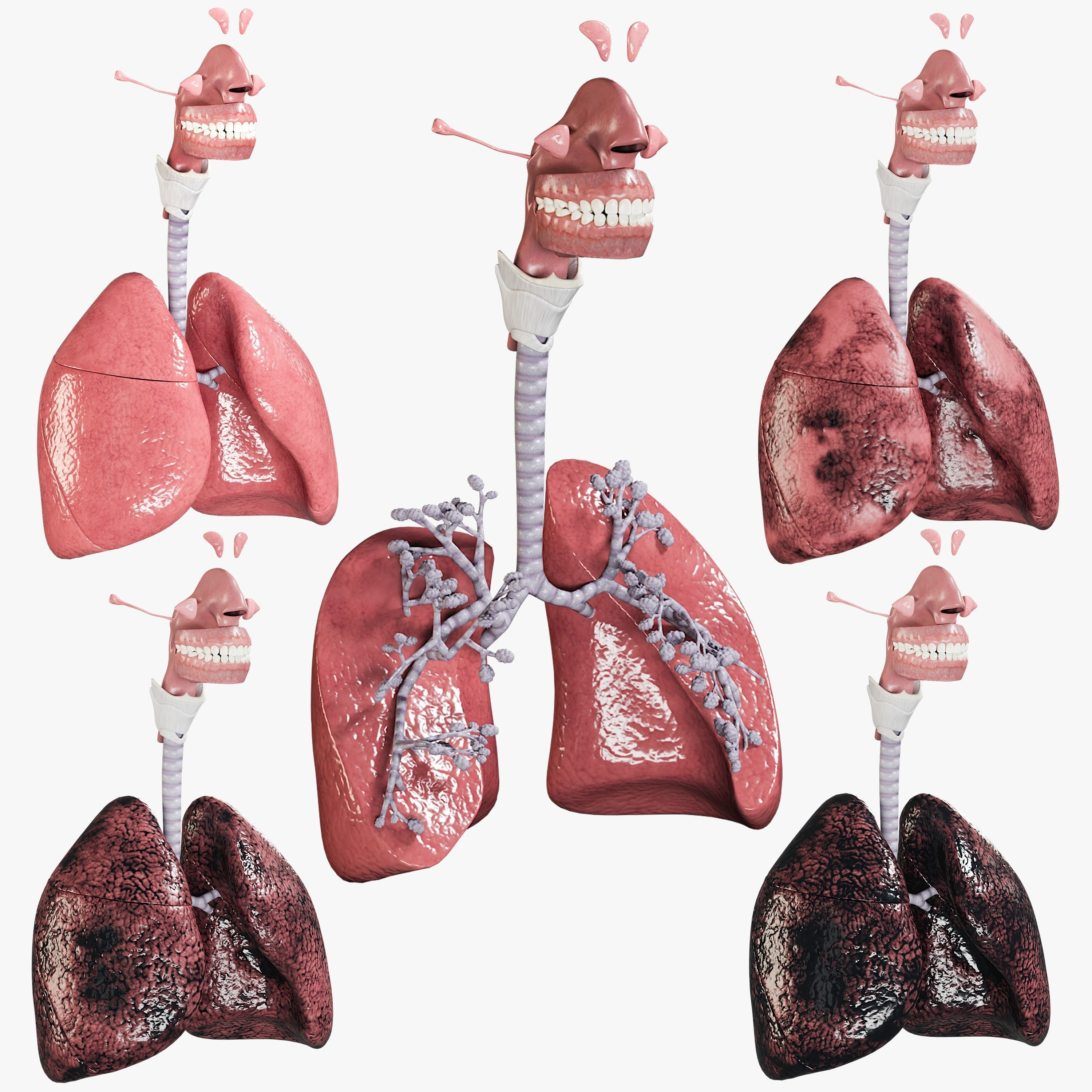 Respiratory System Collection - Smokers Lungs Stages