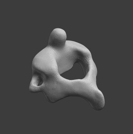Axis  C2 vertebra