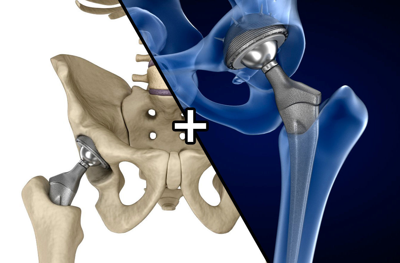 Hip replacement implant installed in the pelvis bone