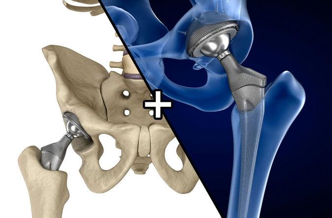 hip replacement implant installed in the pelvis bone 3d model max obj mtl fbx 1