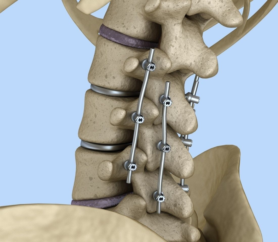 Spinal fixation system - titanium bracket