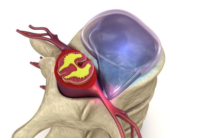hernaited  disc in human spine in details  3d model animated max obj mtl fbx 1