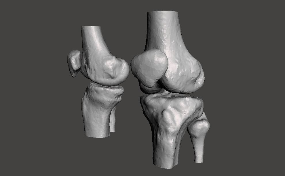 Knee joint - male - age 64