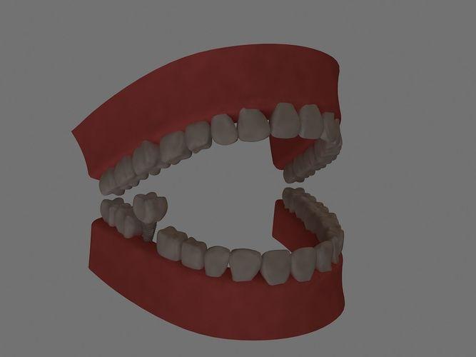 teeth 3d modl low poly  3d model max 1