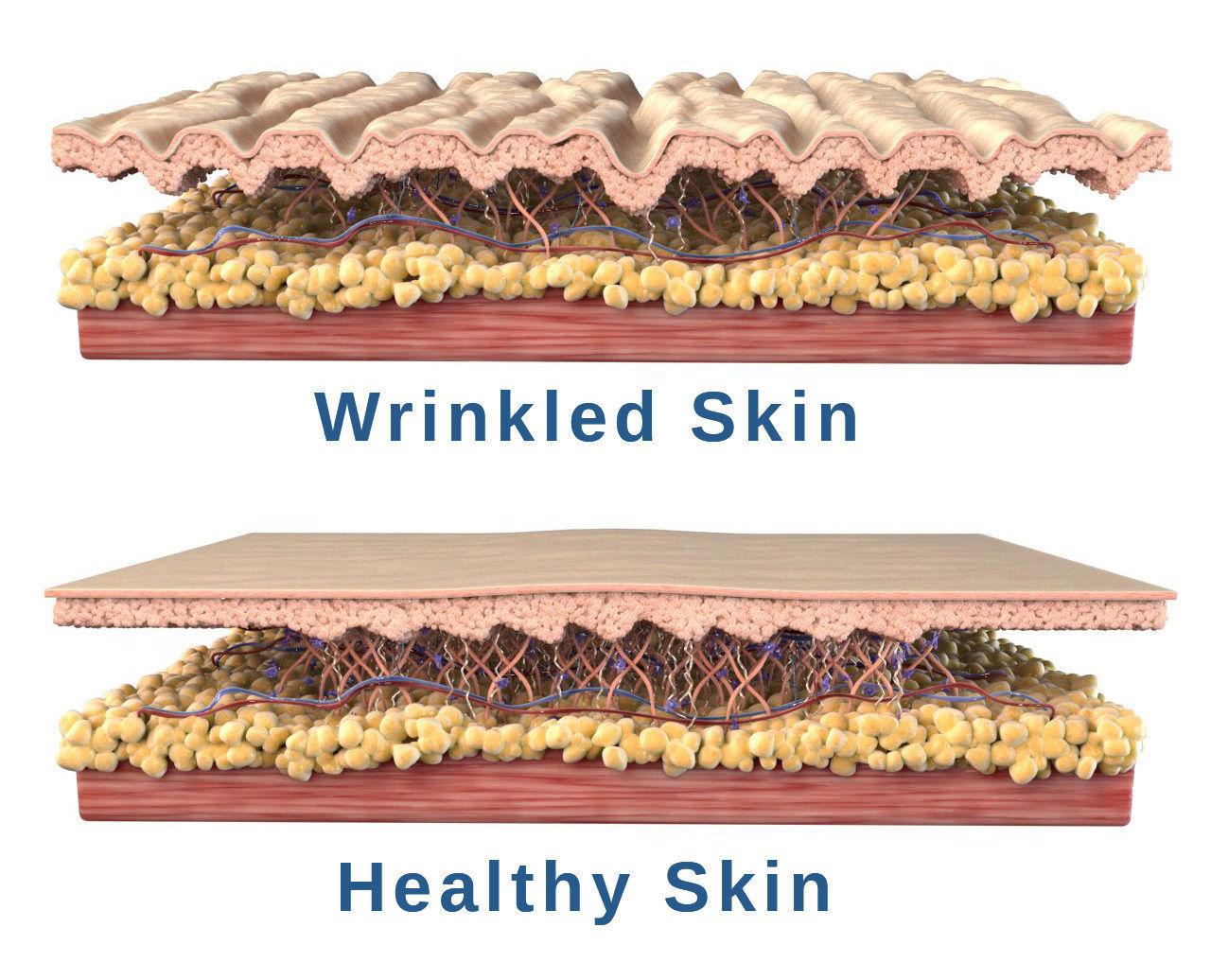 Skin Cross Section